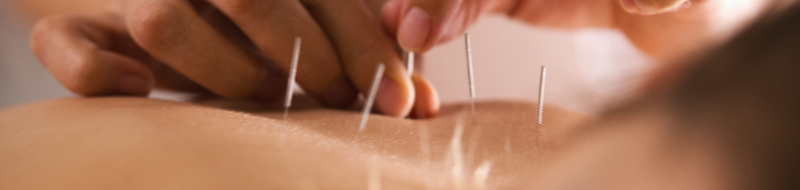 séance acupuncture